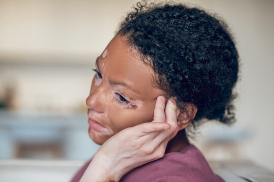 Young dark-skinned woman suffering from a headache