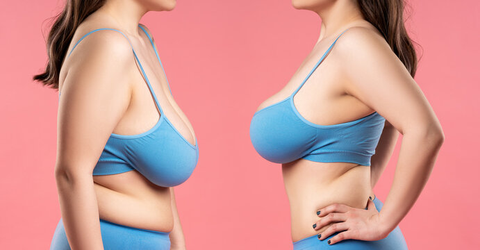 Before and after breast augmentation concept, woman with very large silicone breasts after correction surgery