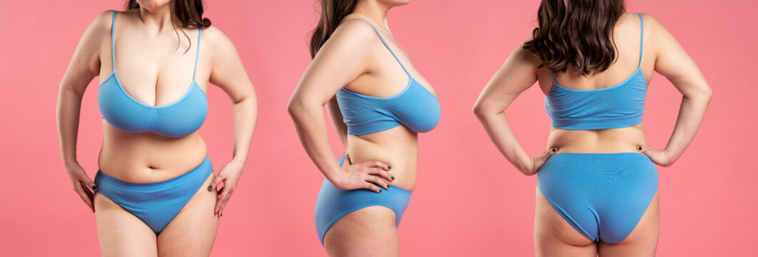 Woman in blue top bra with very large breasts, plastic surgery concept on pink background, collage of several photos