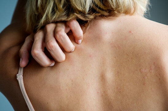 Backside of white woman back pain and ache concept