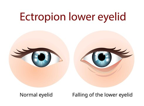 Ectropion Lower eyelid, Ectropion is a condition in which your eyelid turns outward