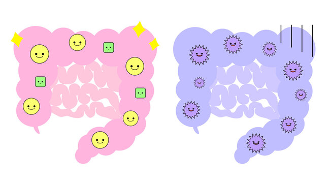 腸のイラスト。善玉菌が多い状態と悪玉菌が多い状態の2つ。