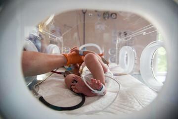 Fototapeta Noworodek w inkubatorze na oddziale neonatologii. Intensywna terapia.  obraz