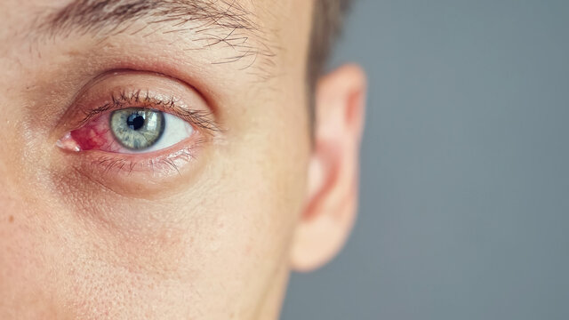 Close up of the red eye of a man affected by an infection, copy space