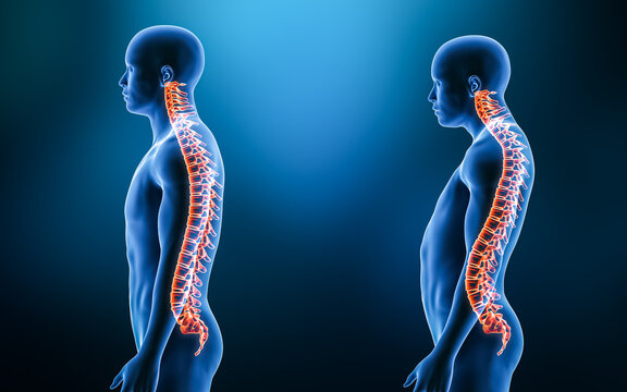 Comparison between normal backbone and lordosis curvature of the spine with man model from lateral view 3D rendering illustration. Human anatomy, spinal disorder, backbone pathology, medical concepts.
