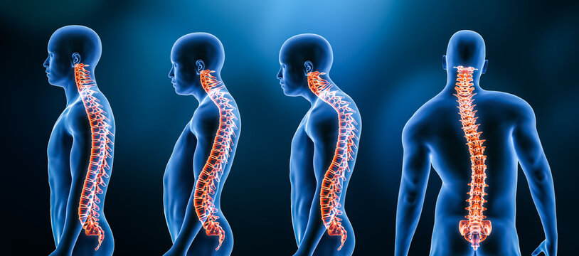 Three main curvatures of the spine disorders or deformities on male body: lordosis, kyphosis and scoliosis 3D rendering illustration. Human anatomy, back injury or disease, medical concepts.