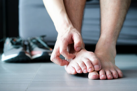 Men wear canvas shoes, he scratches legs and feet with itchy skin. Caused by  of shoes