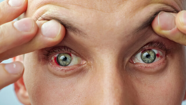 close-up of a man with red sore eyes raising eyelids with fingers looking at the camera.