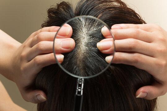 女性の頭皮をルーペで拡大する
