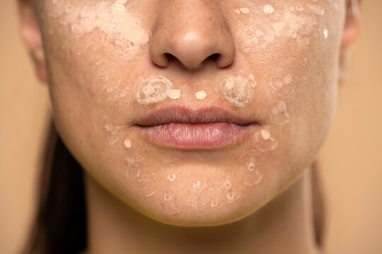 Closeup of young woman with concealer on her face