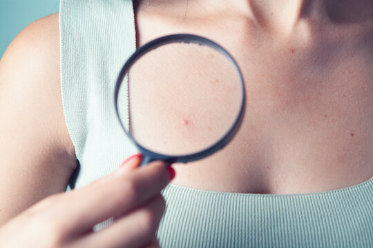 magnifying glass looks at a pimple on the body