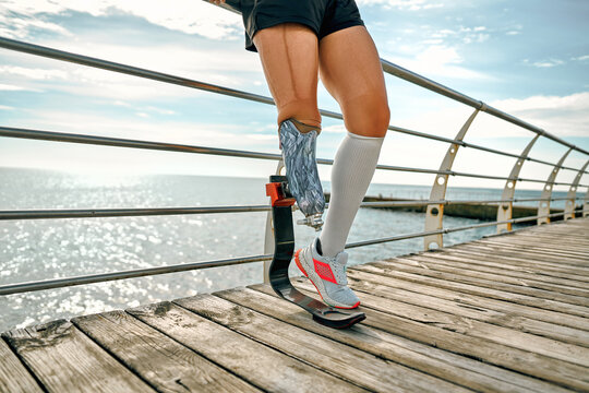 Strong body. Cropped image of disabled young woman in sportswear with bionic leg standing on a bridge in front of the sea.
