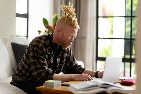 Albino african american man with dreadlocks working from home and using laptop