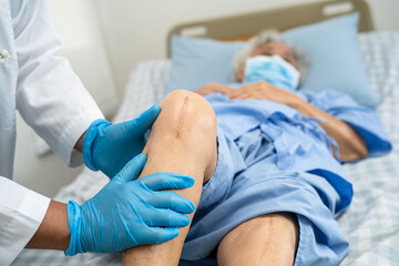 Fototapeta Asian senior or elderly old lady woman patient show her scars surgical total knee joint replacement Suture wound surgery arthroplasty on bed in nursing hospital ward, healthy strong medical concept. obraz