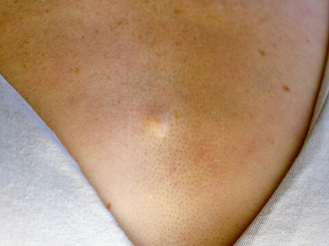sebacous hyperplasia of the woman's chest. Atheroma or lipoma